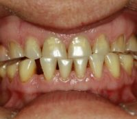 implant_before