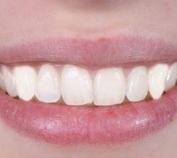 Отбеливание зубов Черкассы