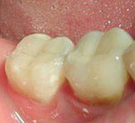 стоматолог черкассы