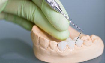 Hand of dentist holding dental gypsum models
